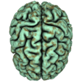 Copper oxide brain.png